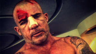 dominic-purcell-injury