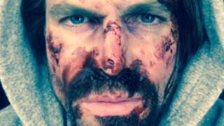 Arrow Season 5 Stephen Amell Bloody Face