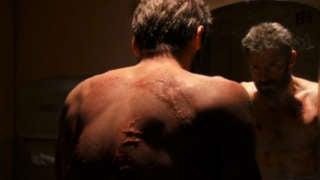 Logan Scars