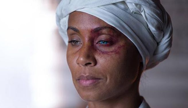 fish-mooney-eye