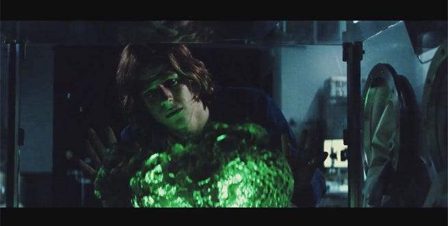 bvs-kryptonite
