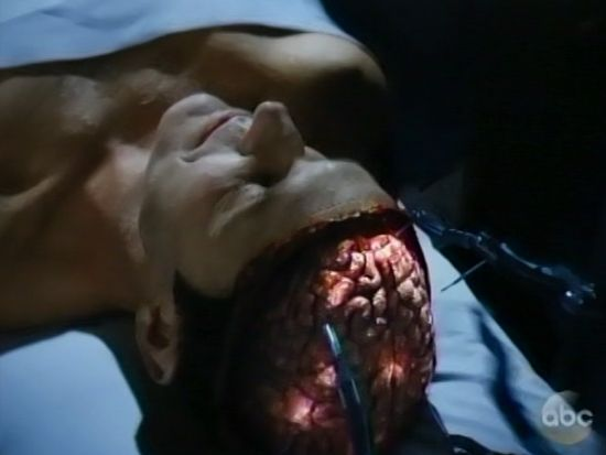 Agent Coulson brain