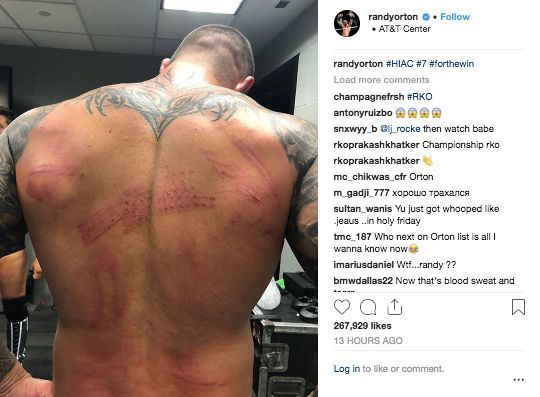 Randy Orton Shows Off Gruesome Battle Wounds After Hell in a Cell