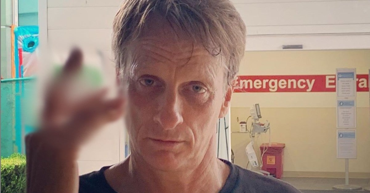 TONY_HAWK_BROKEN_FINGRS