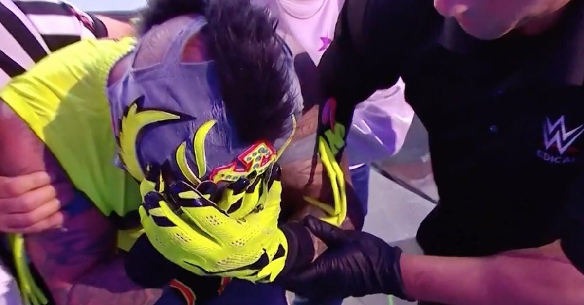 WWE-Rey-Mysterio-loses-eye