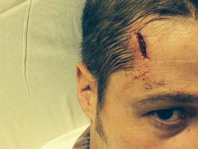 ben-mckenzie-injured